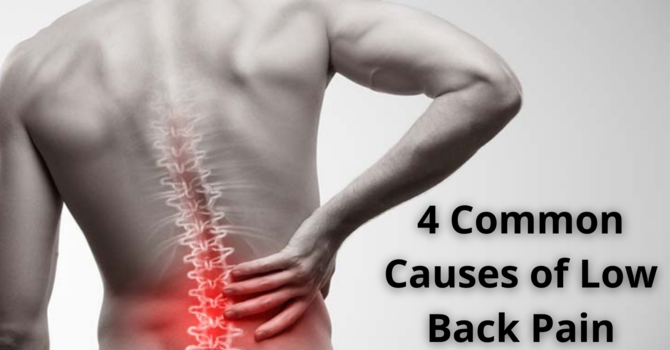 4 Common Causes of Low Back Pain  image