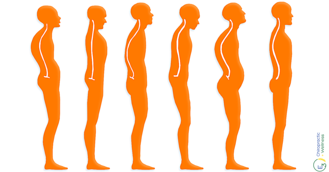 The Truth About Posture  image
